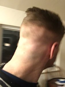 BACK HAIR